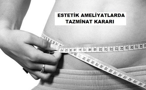 Karın Germe Estetik Operasyonlara İlişkin Maddi ve Manevi Tazminat Davası