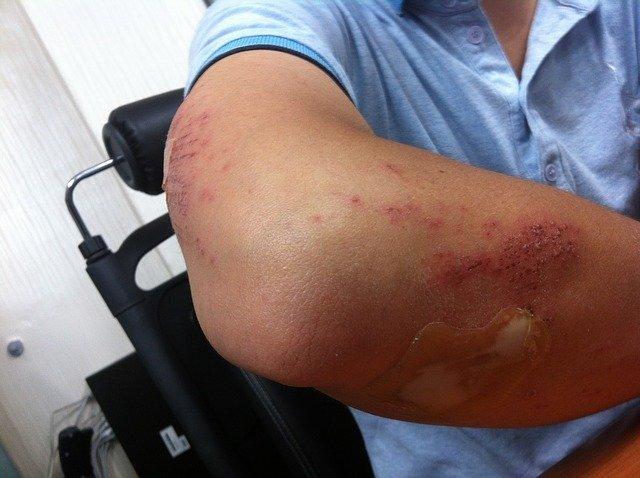 Trafik Kazası Kol Kırığı Durumunda Tazminat